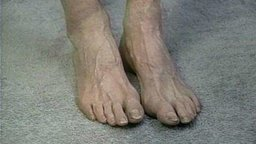 Foot Assessment And Care