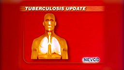 Tuberculosis: Treatment, Causes and Prevention